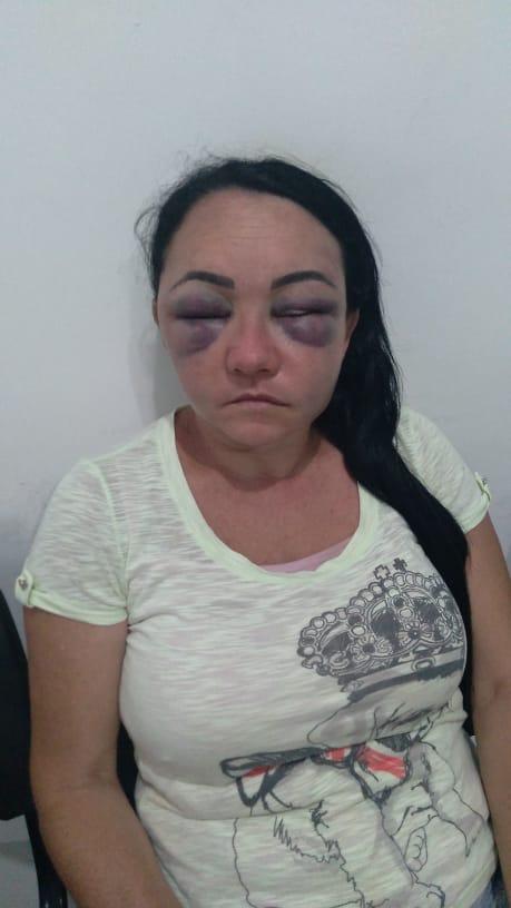 (Foto: Vítima ficou sem enchergar temporariamente devido aos socos desferidos pelo companheiro)